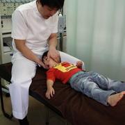 小児矯正治療